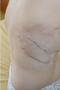 Cicatrici dupa arsura