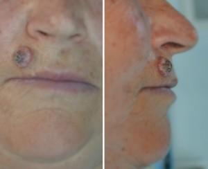Cancer de piele - Dr. Bejinariu
