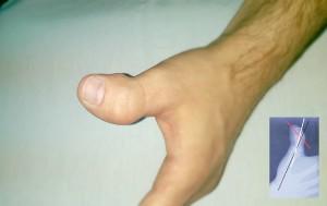 Clinodactilia